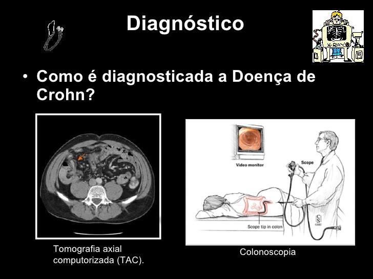 doena-de-crohn-9-728